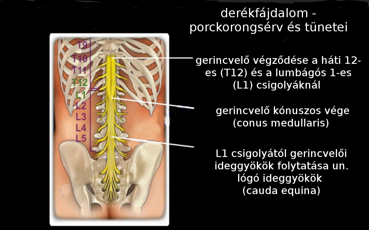 derékfájás lábzsibbadás kezelése)
